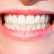 Zahnzusatzversicherung 1